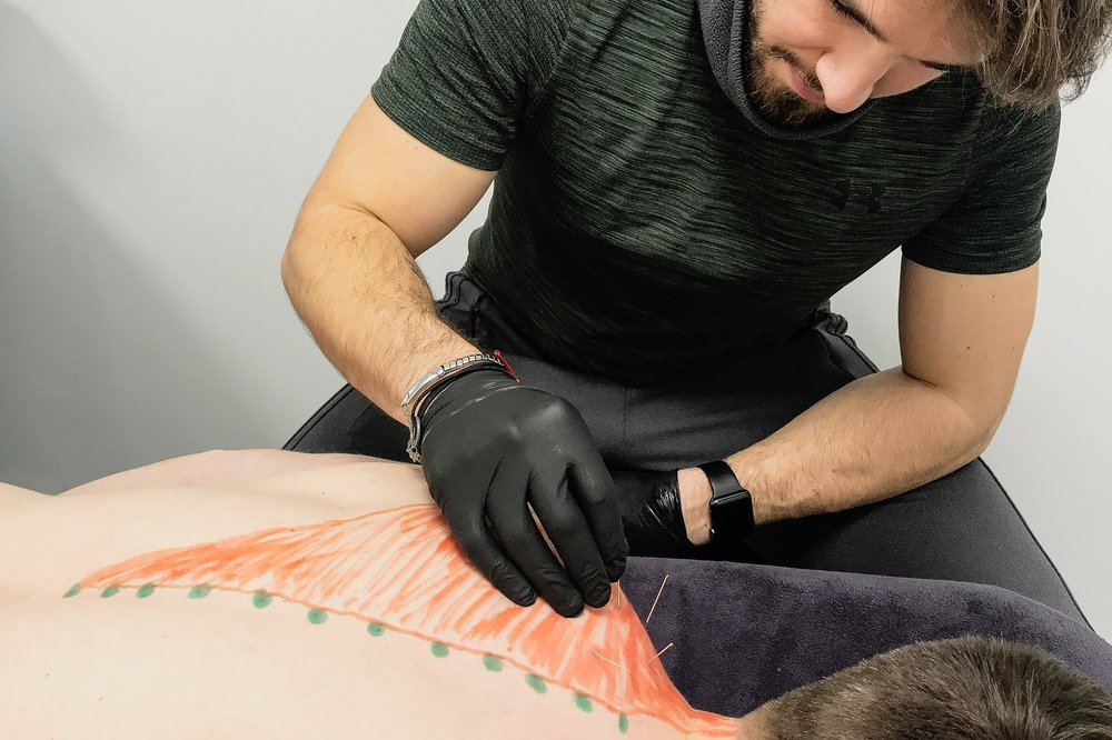 Acupuncture&Dry Needling - This treatment has proven very effective for treating pain. Especially lower back pain. The treatment is also amazing for stress and tension relief.The needles are sterilised and I have undergone special training, so as to be able to correctly use them. They are also not as painful as most people think - if you use them right!