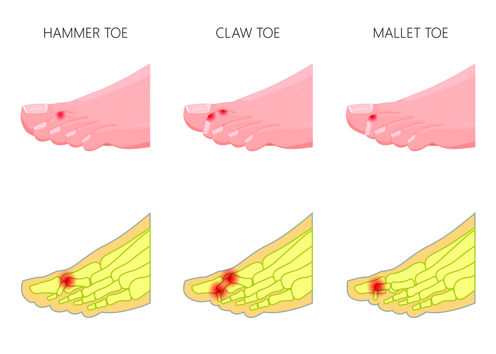 hammertoe doctor, podiatrist william buffone can help you find hammertoe pain relief