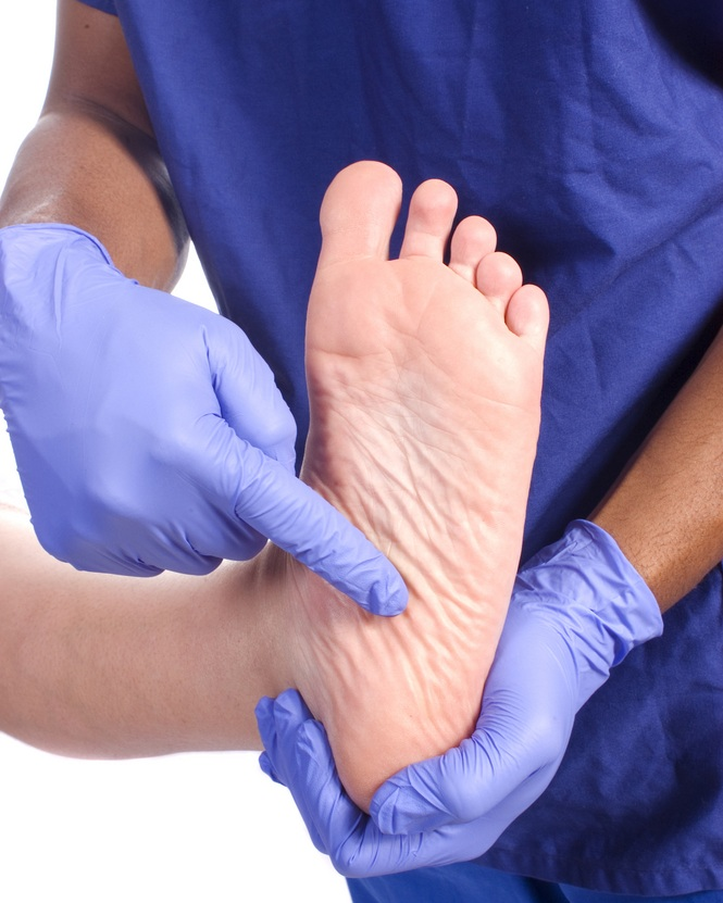 wart specialist and foot doctor, podiatrist william buffone can help you
