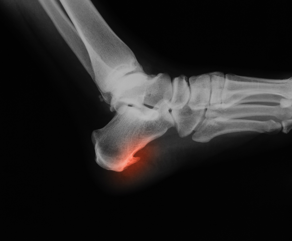 foot surgeon, podiatrist william buffone treats foot, ankle and toe fractures