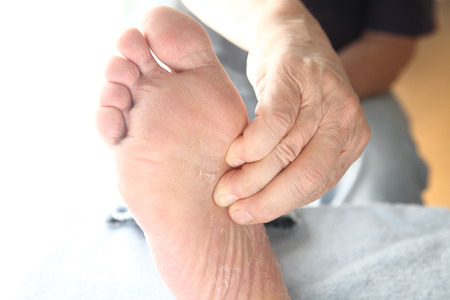 Diabetic Winter Foot Care Our Top Tips For Healthy Feet North