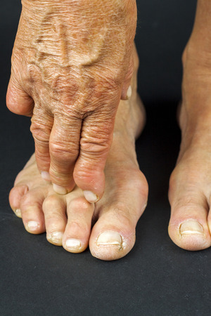 If You Have Diabetes Foot Care Treatments Are Crucial To Your