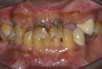 Poor Oral Health Habits and Excessive Untreated Extractions