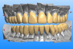 3D-CAD-CAM-design-300x200.png