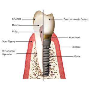 dental-implant-square-1-300x300.jpg