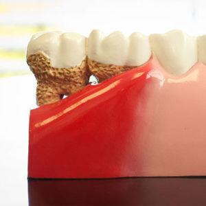 gum-disease-square-300x300.jpg