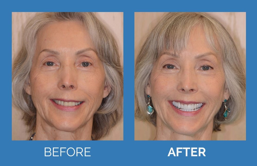 Cosmetic Makeover with Zirconia Crowns