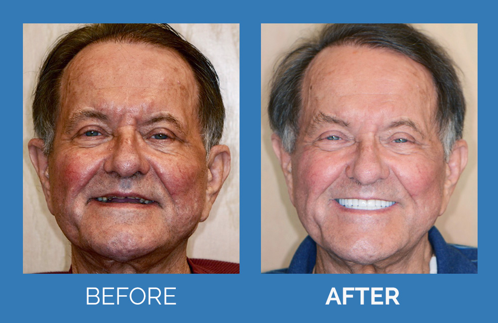 Full Mouth Implant & Crown Reconstruction