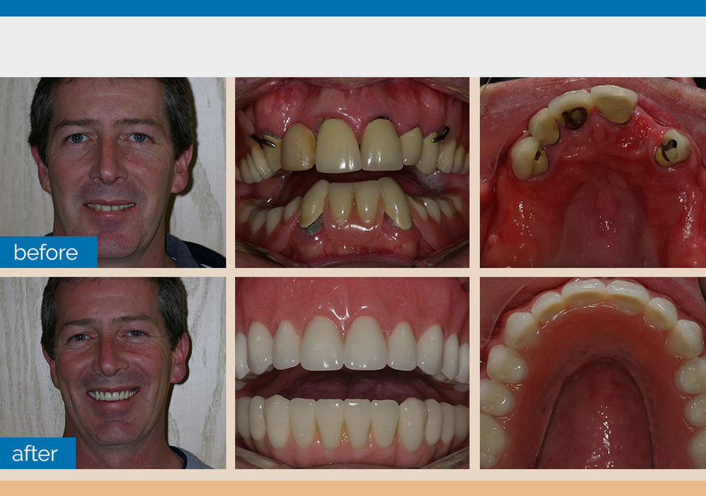 Overdenture and Lower Fixed Bridge