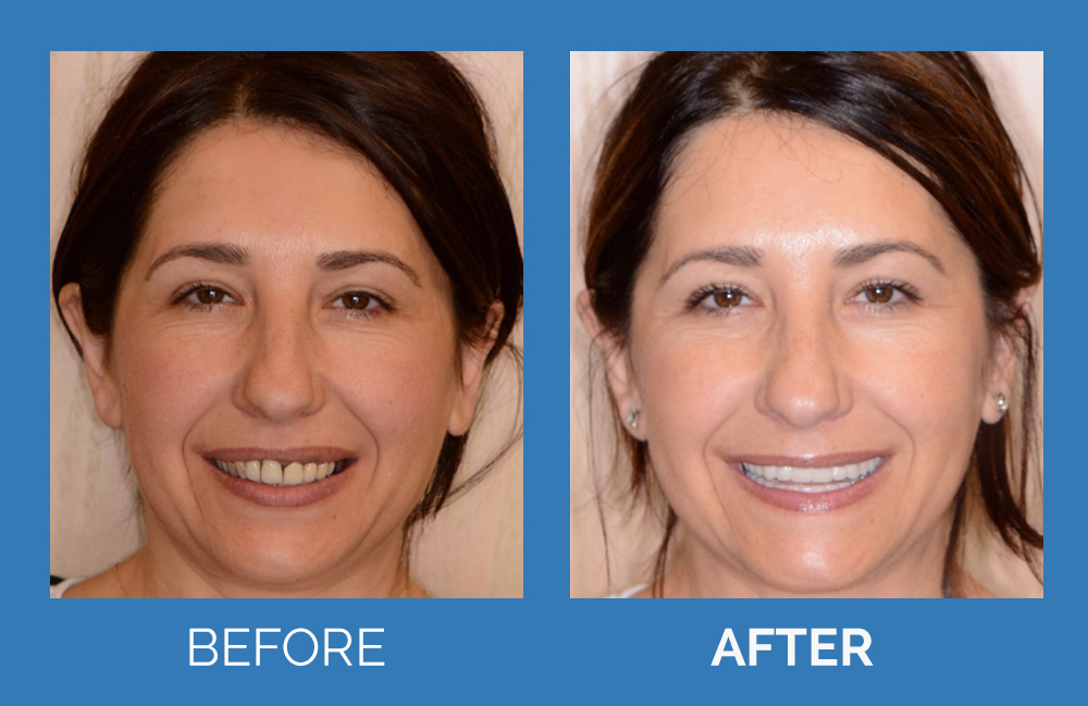 Same Day Full Mouth Implant Reconstruction