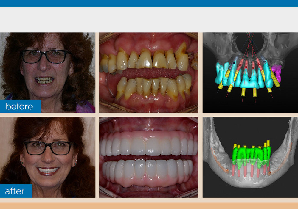 Full Mouth Guided Implants