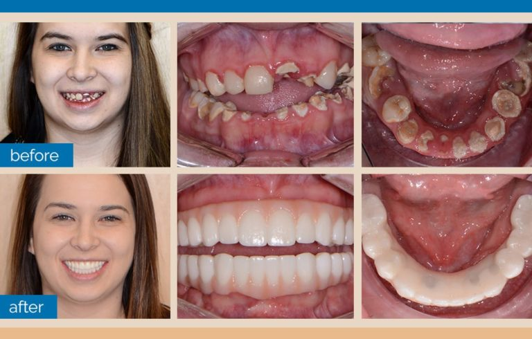 Full Mouth Implant Reconstruction Guided Surgery