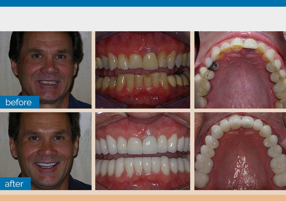 Full Mouth Reconstrcution Zirconia Crowns