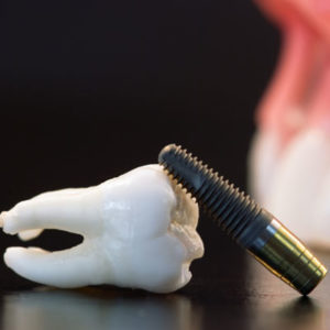 dental-implant-square-300x300.jpg