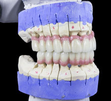 New Choices for Replacement Teeth
