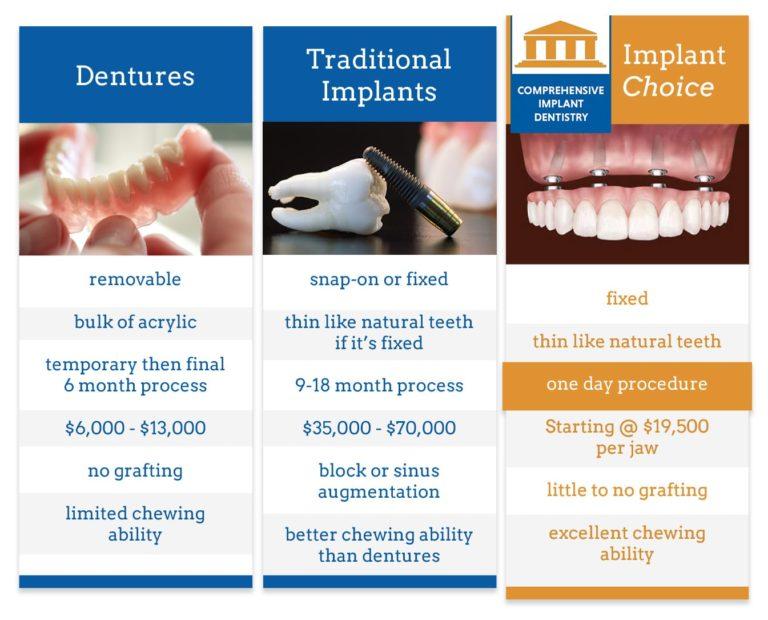 implant-choice-768x620.jpg