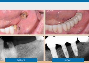 Quadrant-Implants-Guided-300x211.jpg