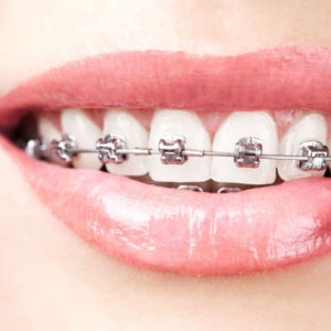 braces-metal-square-300x300.jpg