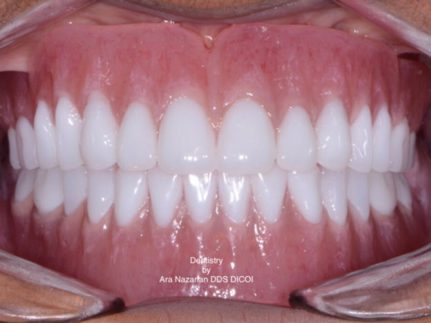 Dentures-Blog-624x468.jpg