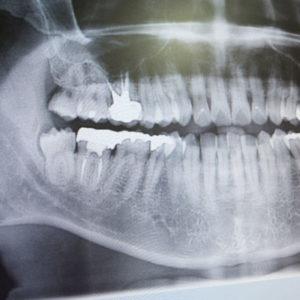 dental-xrays-square-300x300.jpg