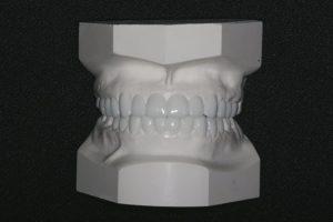 emax-2-300x200.jpg