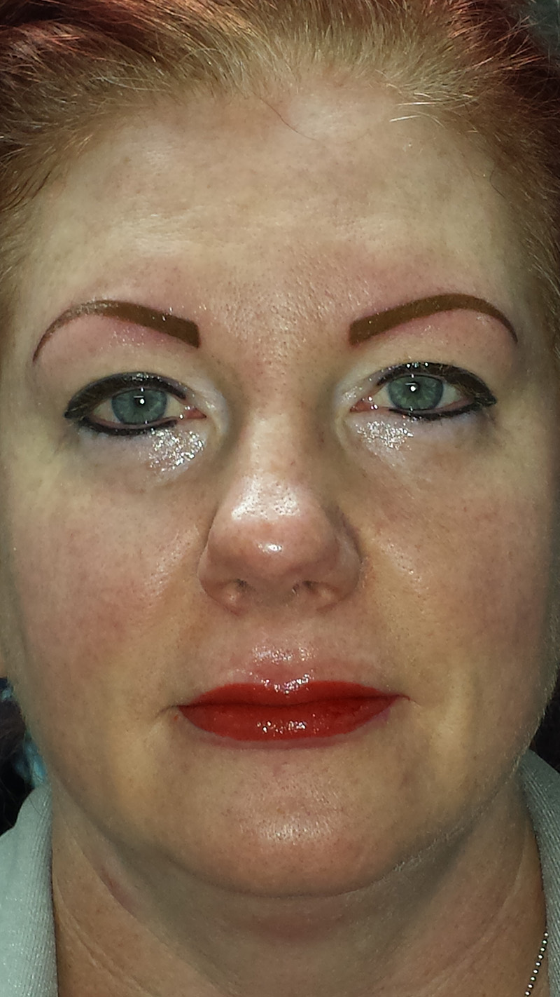 Client wanted me to tattoo her brows and eyeliner much thicker and go darker on her lips.