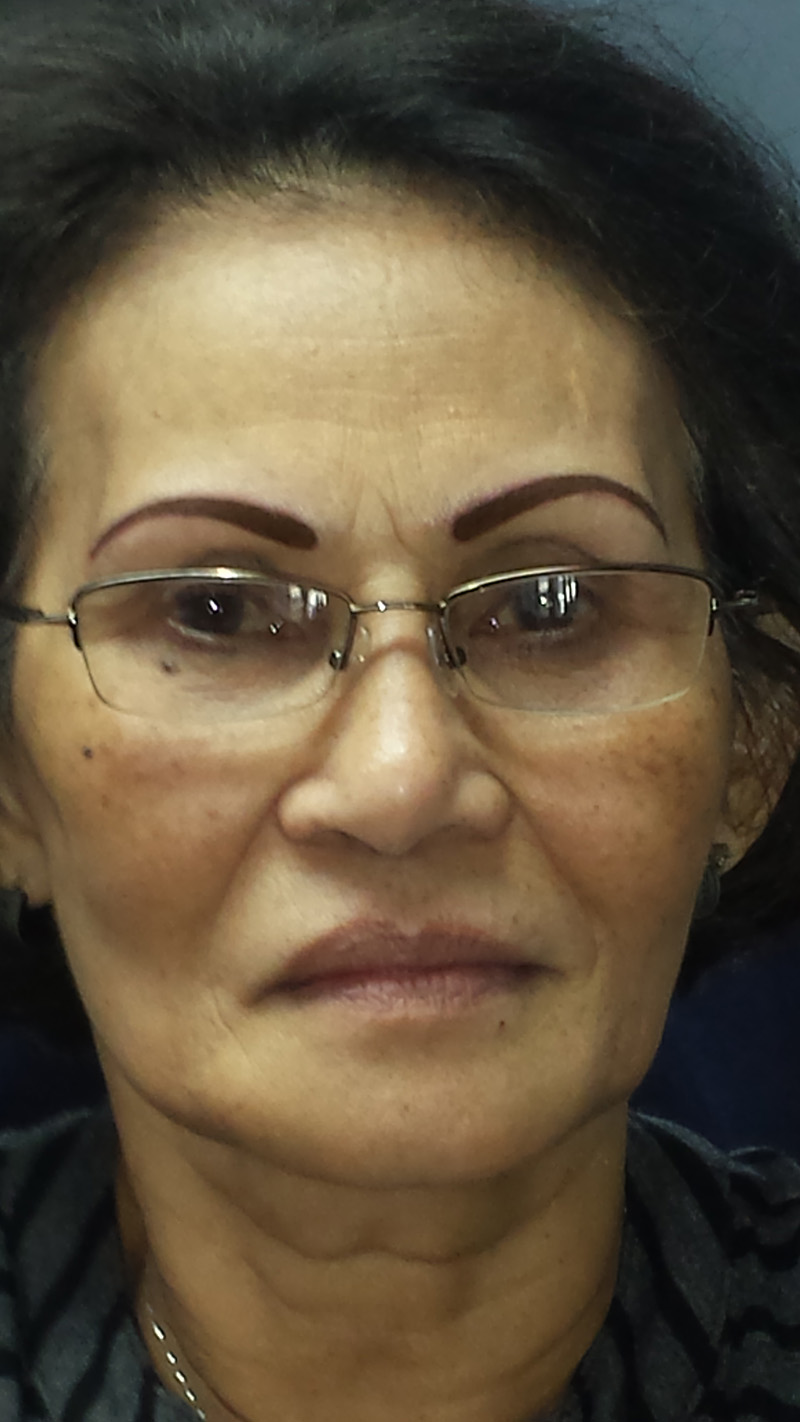 After – Eyebrows are not perfect, but it's an improvement from what she had.