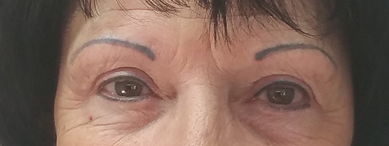This client came to me after having work done somewhere else. The brows were misshapen and way too black/blue.