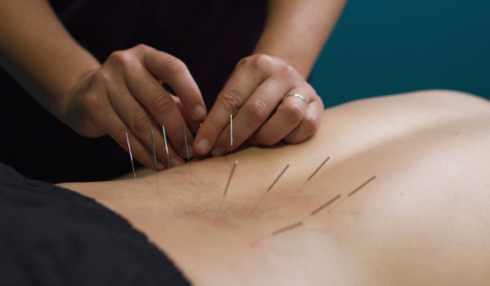 Dry needling, back pain
