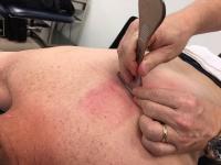 myofascial release, scraping, graston, IASTM
