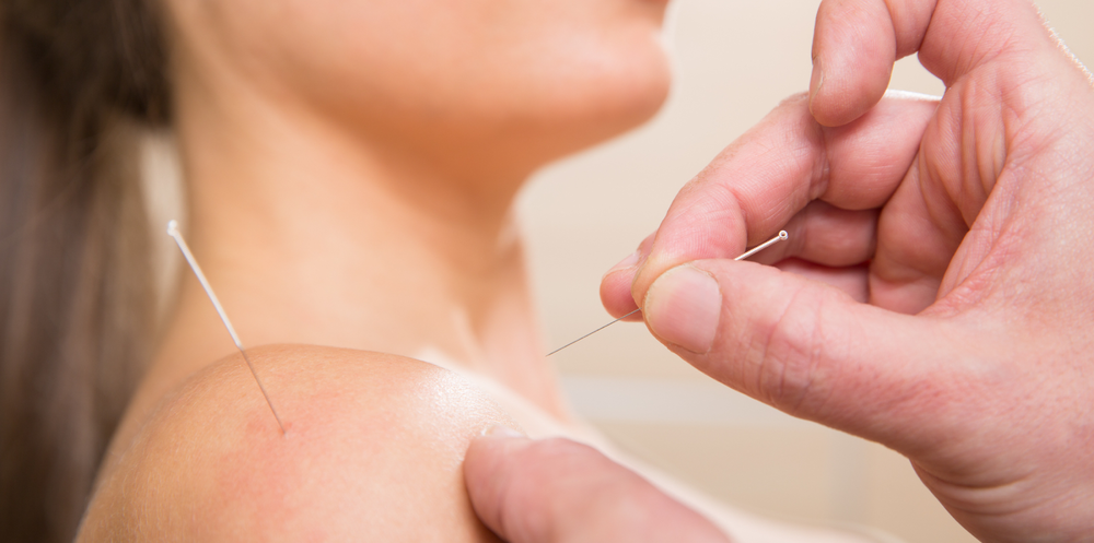 """""""Dry needling is not Acupuncture or Oriental Medicine."""" - 'The ideology between dry needling and traditional Chinese acupuncture are completely different.."""""""