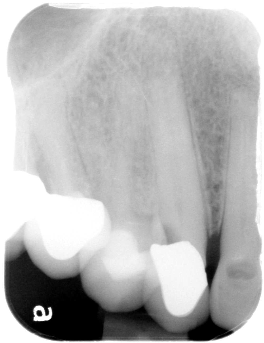Maclean b root canal before.jpg