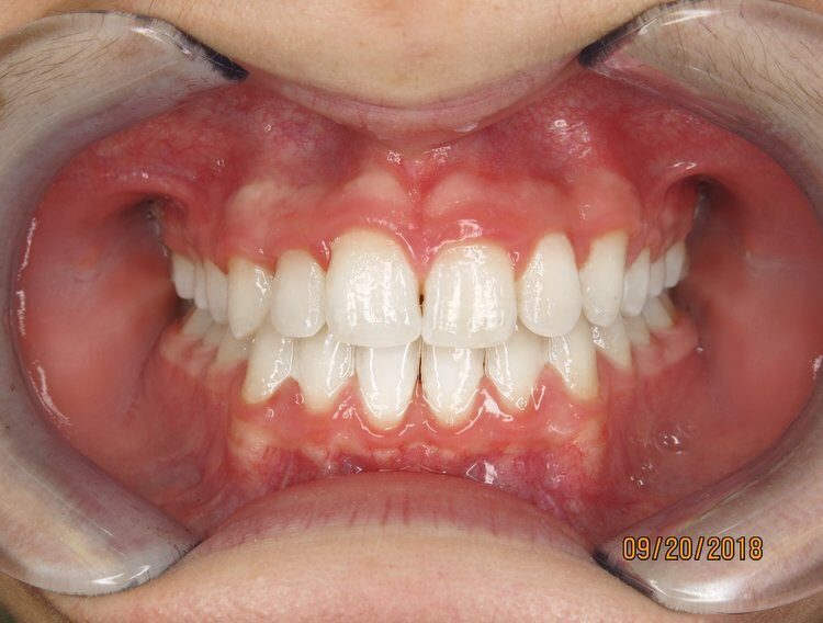 Orthodontic Facial Photo 4.JPG