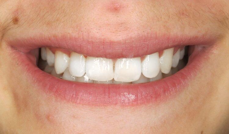 Orthodontic Facial Photo 6.JPG