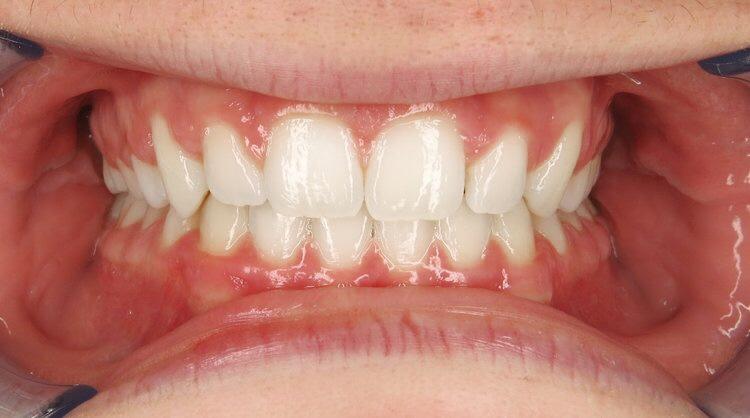 Orthodontic Facial Photo 1.JPG