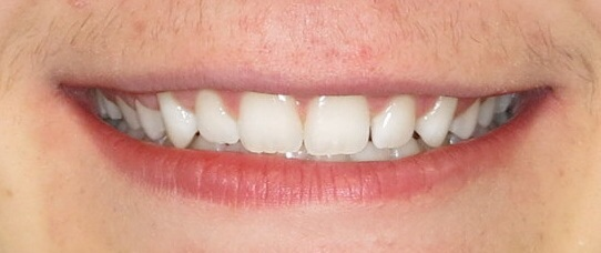 Orthodontic Facial Photo.JPG
