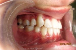 Orthodontic Facial Photo 7.JPG
