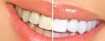 before after whitening 1.jpg
