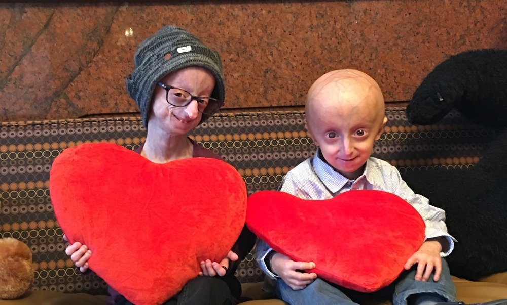- Lindsay and AlessandroPhoto Courtesy of The Progeria Research Foundation, www.progeriaresearch.org