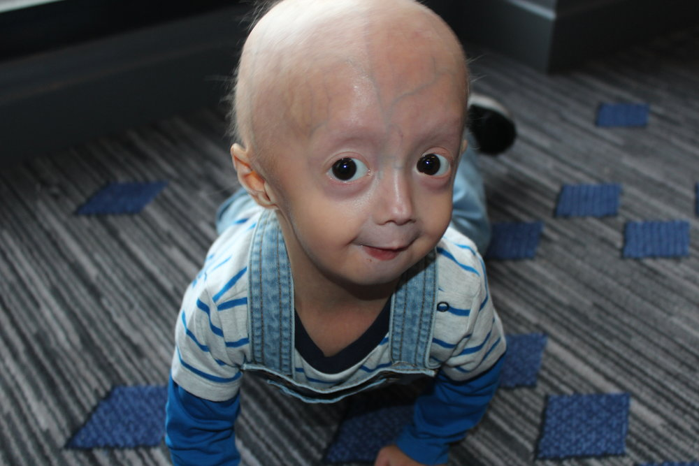 - AlptugPhoto Courtesy of The Progeria Research Foundation, www.progeriaresearch.org