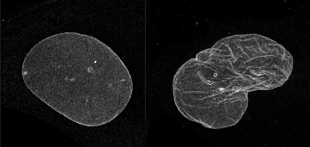 - High resolution microscopy images showing the nuclear envelope in a normal cell (left) compared to a progeria cell (right).