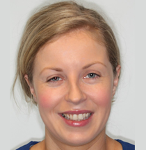 Georgina West - Georgina joined our team in January 2014. She has many years experience as a dental nurse and assistant working in Dublin and locally in Athlone. Her career in dentistry started in 2001 where she worked in general practice, Georgina achieved a Certificate in Dental Nursing from Trinity College Dublin in 2003. In 2015, she completed a certificate in Dental Radiography with distinction from Dublin Dental Hospital.