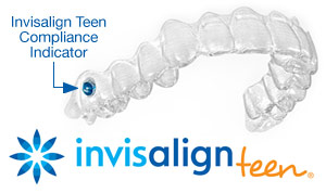 Caring for YourTeeth DuringInvisalign Treatment - As mentioned above, one of the main advantages of the Invisalign system is that the trays can be removed for easy cleaning. Your aligners, too, will have to be cleaned regularly; you can do this by brushing them and then rinsing them with lukewarm water.Also, please keep in mind that while wearing clear aligners is very different from wearing braces, the importance of retaining your post-treatment results is exactly the same. You'll want to be sure to wear your retainer(s) exactly as prescribed after your treatment is completed to protect your investment in a beautiful new smile.