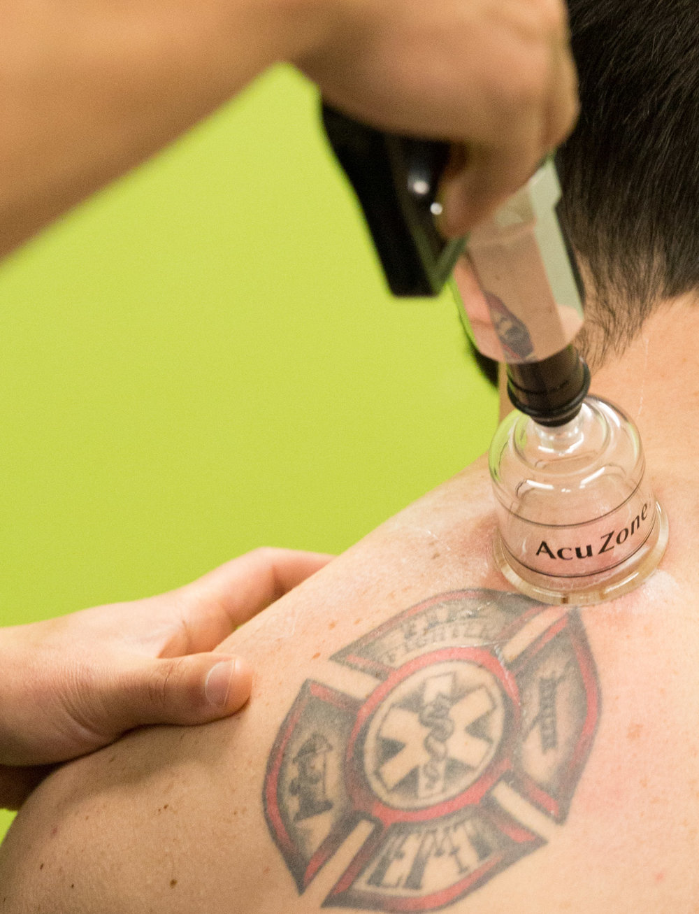Cupping-Therapy-Fremont-Seattle.jpg