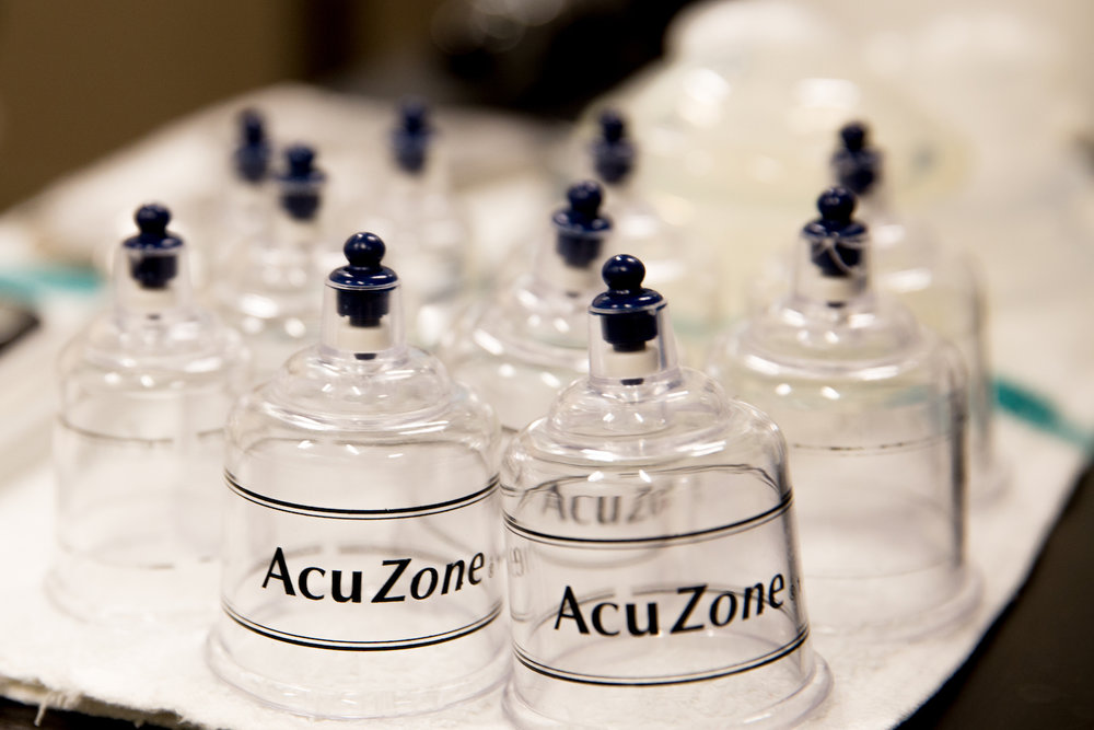 Cupping is an ancient method with a modern twist. - Get relief so you can do what you love.