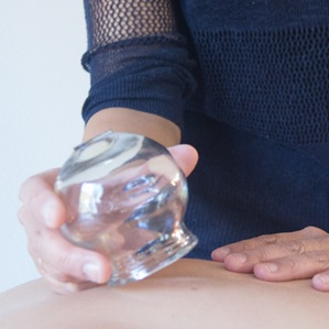 cupping-acupuncture-greenlake-seattle-3