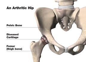 arthritic_hip_w.jpg