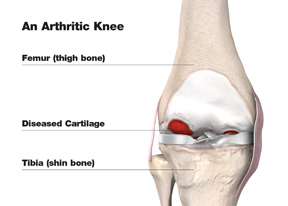 total_knee_arthritic_w.jpg