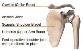 shoulder4.jpg