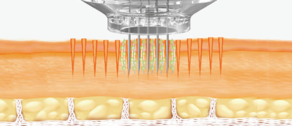 Effects of Electroporation: Maximizes the drug absorption of cells